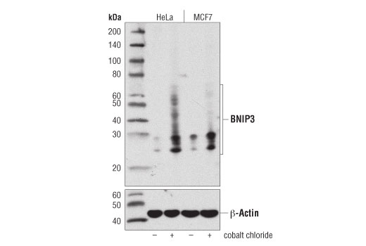 Western blot analysis of extracts from HeLa or MCF7 cells, untreated (-) or cobalt chloride-treated (100 μM, overnight; +), using BNIP3 (D7U1T) Rabbit mAb (upper) or β-Actin (D6A8) Rabbit mAb #8457 (lower).