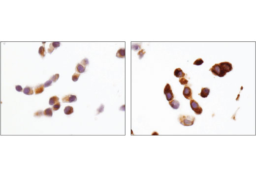 Monoclonal Antibody Immunohistochemistry Paraffin Autophagic Cell Death