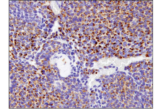 Immunohistochemical analysis of paraffin-embedded human ovarian carcinoma using BNIP3 (D7U1T) Rabbit mAb.