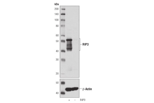 Western blot analysis of extracts from wild-type (+) or RIP3 knockout (-) mouse spleen using RIP3 (D4G2A) Rabbit mAb (upper) or β-Actin (D6A8) Rabbit mAb #8457 (lower). Data were kindly provided by Dr. Junying Yuan, Harvard Medical School, Boston MA.