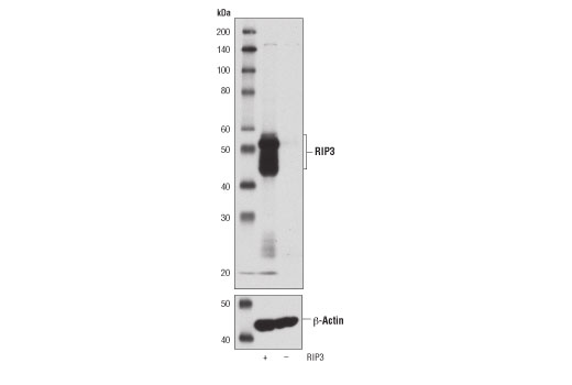 Western blot analysis of extracts from wild-type (+) or RIP3 knockout (-) mouse spleen using RIP3 (D8J3L) Rabbit mAb (upper) or β-Actin (D6A8) Rabbit mAb #8457 (lower). Data were kindly provided by Dr. Junying Yuan, Harvard Medical School, Boston MA.