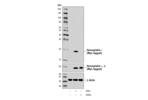 Western blot analysis of extracts from 293T cells, mock-transfected (-) or transfected with a construct expressing Myc-tagged full-length human hemoglobin γ (hHbγ, +) or hemoglobin β (hHbβ, +), using Hemoglobin γ (D4K7X) Rabbit mAb (upper), Myc-Tag (71D10) Rabbit mAb #2278 (middle), and β-Actin (D6A8) Rabbit mAb #8457 (lower).