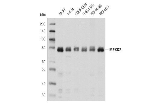 Polyclonal Antibody - MEKK2 Antibody - Immunoprecipitation, Western Blotting, UniProt ID Q9Y2U5, Entrez ID 10746 #19607 - Primary Antibodies