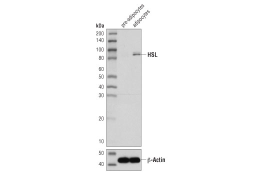 Western blot analysis of extracts from human pre-adipocytes and differentiated human adipocytes using HSL (D6W5S) XP<sup>®</sup> Rabbit mAb (upper) and β-Actin (D6A8) Rabbit mAb #8457 (lower).