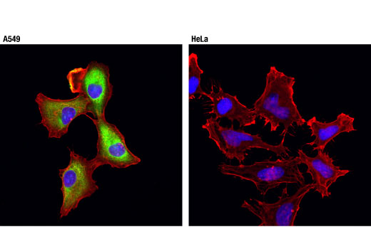 Immunofluorescence Image 1: ALDH1A1 (D9J7R) XP® Rabbit mAb
