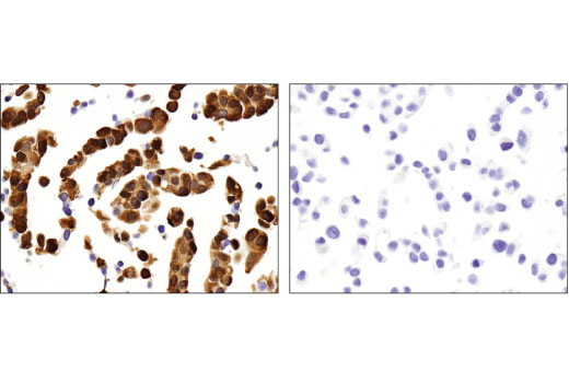 Immunohistochemical analysis of paraffin-embedded Hep G2 (left) and MCF7 (right) cell pellets using ALDH1A1 (D9Q8E) XP<sup>® </sup>Rabbit mAb.