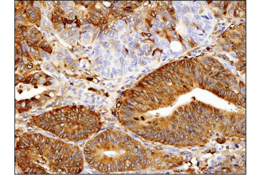 Immunohistochemical analysis of paraffin-embedded human colon carcinoma using ALDH1A1 (D9Q8E) XP<sup>® </sup>Rabbit mAb.