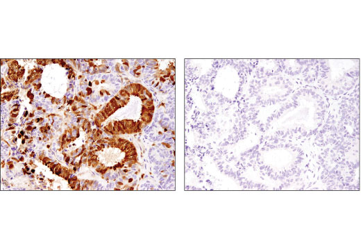 Immunohistochemical analysis of paraffin-embedded human ovarian carcinoma using Galectin-3/LGALS3 (D4I2R) XP<sup>®</sup> Rabbit mAb in the presence of control peptide (left) or antigen-specific peptide (right).