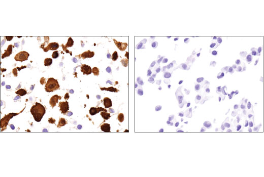 Immunohistochemical analysis of paraffin-embedded SK-MEL-28 (left) and LNCaP (right) cell pellets using Galectin-3/LGALS3 (D4I2R) XP<sup>®</sup> Rabbit mAb.
