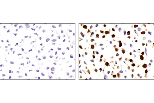 Immunohistochemical analysis of paraffin-embedded HeLa cell pellets, untreated (left) or treated with Human Interferon-γ (hIFN-γ) #8901 (10 ng/ml, 16 hr; right), using IDO (D5J4E™) Rabbit mAb.