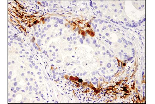 Immunohistochemical analysis of paraffin-embedded human breast carcinoma using IDO (D5J4E™) Rabbit mAb.