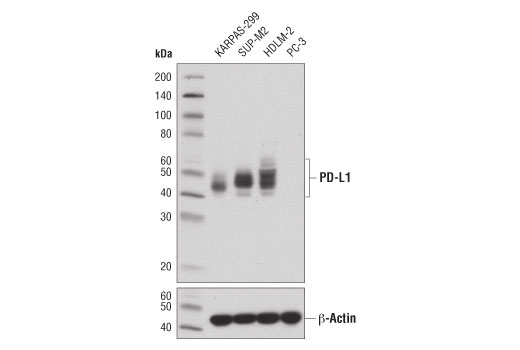 Western blot analysis of extracts from various cell lines using PD-L1 (405.9A11) Mouse mAb (upper) or β-Actin (D6A8) Rabbit mAb #8457 (lower). KARPAS-299 cell line source: Dr Abraham Karpas, University of Cambridge.