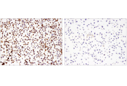 Immunohistochemical analysis using PD-L1 (405.9A11) Mouse mAb on SignalSlide<sup>®</sup> PD-L1 IHC Controls #13747 (paraffin-embedded cell pellets, HDLM-2 (left) or PC-3 (right)).
