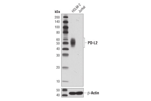 Western blot analysis of HDLM-2 and Jurkat cell extracts using PD-L2 (D7U8C™) XP<sup>®</sup> Rabbit mAb (upper) and β-Actin (D6A8) Rabbit mAb #8457 (lower).