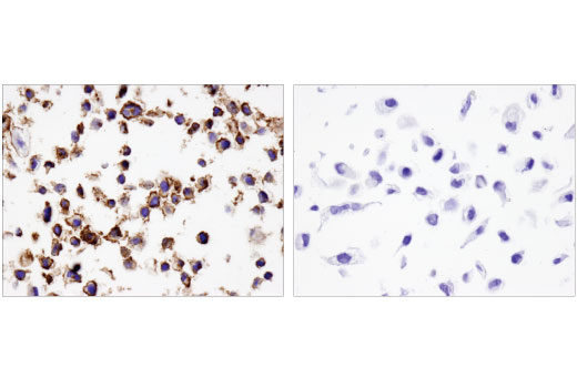 Immunohistochemical analysis of paraffin-embedded HDLM-2 (left) and PC-3 (right) cell pellets on SignalSlide<sup>®</sup> PD-L1 IHC Controls #13747 using PD-L2 (D7U8C™) XP<sup>®</sup> Rabbit mAb.