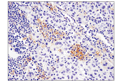 Immunohistochemical analysis of paraffin-embedded human non-small cell lung carcinoma using PD-L2 (D7U8C™) XP<sup>®</sup> Rabbit mAb performed on the Leica® BOND™ Rx.