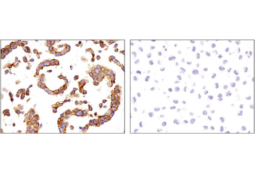 Immunohistochemical analysis of paraffin-embedded Hep G2 (left) and K-562 (right) cell pellets using CAR (D3W3G) Rabbit mAb.