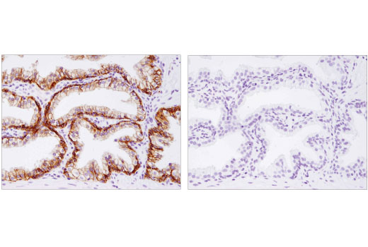 Immunohistochemical analysis of paraffin-embedded human prostate carcinoma using CAR (D3W3G) Rabbit mAb in the presence of control peptide (left) or antigen-specific peptide (right).