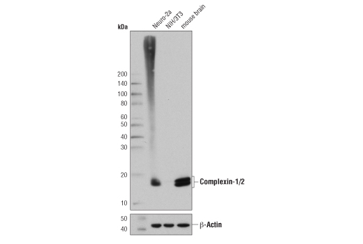 Western blot analysis of extracts from Neuro-2a, NIH/3T3, and mouse brain, using Complexin-1/2 (D8A6E) Rabbit mAb (upper) and β-Actin (D6A8) Rabbit mAb #8457 (lower).