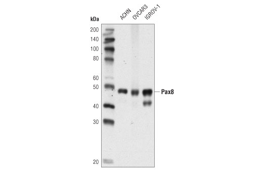 Western blot analysis of extracts from ACHN, OVCAR3, and IGROV-1 cells using PAX8 (D2S2I) Rabbit mAb.