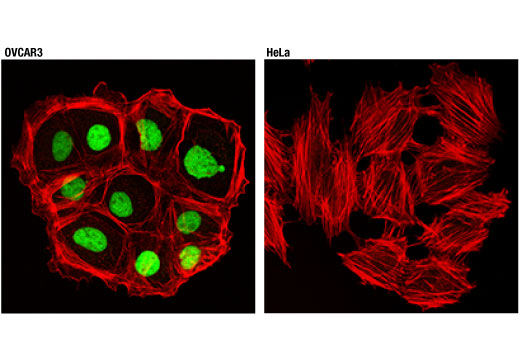 Confocal immunofluorescent analysis of OVCAR3 (left) and HeLa (right) cells using PAX8 (D2S2I) Rabbit mAb (green). Actin filaments were labeled with DyLight™ 554 Phalloidin #13054 (red).