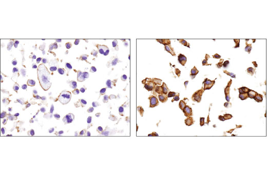 Immunohistochemical analysis of paraffin-embedded SK-MEL-2 (left) and PANC-1 (right) cell pellets using MRP1/ABCC1 (D5C1X) Rabbit mAb.