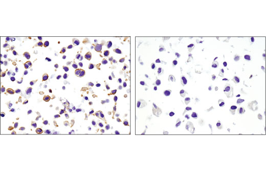 Immunohistochemical analysis of paraffin-embedded HeLa (left) or NCI-H28 (right) cell pellets using Non-phospho (Active) β-Catenin (Ser45) (D2U8Y) XP<sup>®</sup> Rabbit mAb.