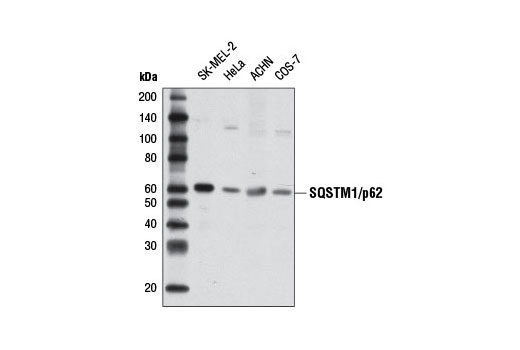 Western blot analysis of extracts from various cell lines using SQSTM1/p62 (D5E2) Rabbit mAb #8025.