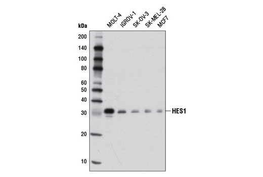 Western blot analysis of extracts from various cell lines using <b>HES1 (D6P2U) Rabbit mAb #11988</b>.