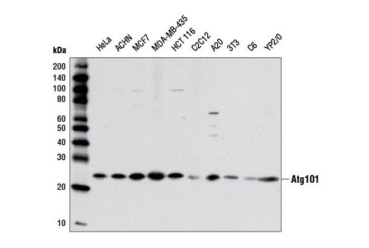 Western blot analysis of extracts from various cell lines using Atg101 (E1Z4W) Rabbit mAb #13492.
