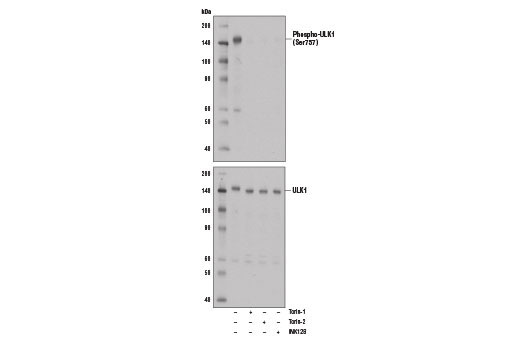 Western blot analysis of extract from A172 cells, untreated (-) or treated with mTOR inhibitors, either Torin-1 (250 nM, 5 hrs), Torin-2 (250 nM, 5 hrs), or INK128 (250 nM, 5 hours) using Phospho-ULK1 (Ser757) (D7O6U) Rabbit mAb #14202 (upper) or ULK1 (D8H5) Rabbit mAb #8054 (lower).