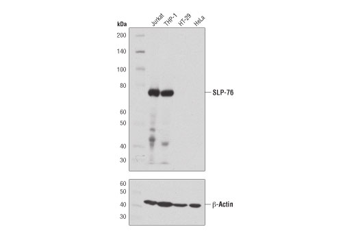 Western blot analysis of extracts from various cell lines using SLP-76 (D1R1A) Rabbit mAb (upper) or β-Actin (D6A8) Rabbit mAb #8457 (lower).