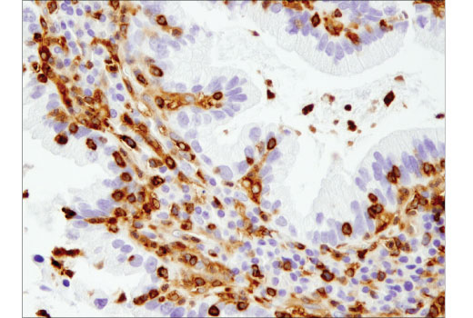 Immunohistochemical analysis of paraffin-embedded human lung carcinoma using SLP-76 (D1R1A) Rabbit mAb.