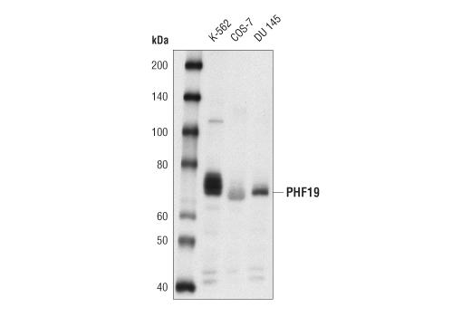 Polyclonal Antibody - PHF19 Antibody - Immunoprecipitation, Western Blotting, UniProt ID Q5T6S3, Entrez ID 26147 #77271 - Primary Antibodies