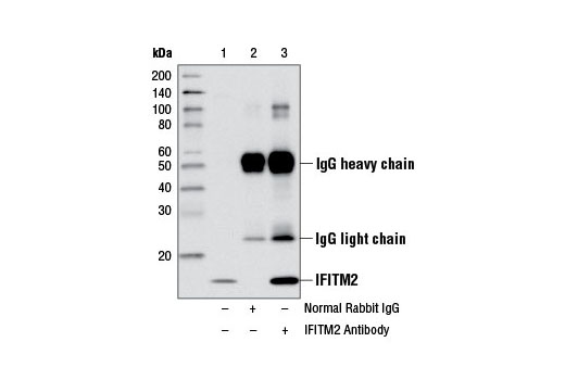 Immunoprecipitation of IFITM2 from HeLa cell extracts using Normal Rabbit IgG #2729 (lane 2) or IFITM2 Antibody (lane 3). Lane 1 is 10% input. Western blot analysis was performed using IFITM2 Antibody.