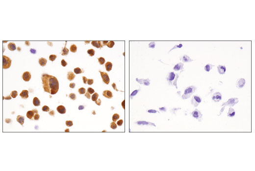 Immunohistochemical analysis of paraffin-embedded HCT 116 (left) and A172 (right) cell pellets using FABP5 (D1A7T) Rabbit mAb.