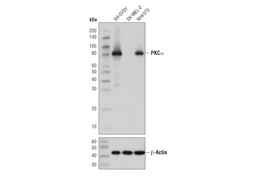 Western blot analysis of extracts from various cell lines using PKCα (D7E6E) Rabbit mAb (upper) and β-Actin (D6A8) Rabbit mAb #8457 (lower).