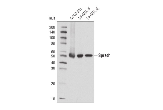Western blot analysis of extracts from COLO 201, SK-MEL-5, and SK-MEL-2 cell lines using Spred1 (D6D8B) Rabbit mAb.