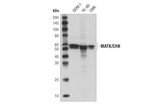 Monoclonal Antibody - MATK/CHK (D2I6U) Rabbit mAb - Immunoprecipitation, Western Blotting, UniProt ID P42679, Entrez ID 4145 #20729