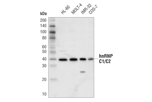 Monoclonal Antibody - hnRNP C1/C2 (D6S3N) Rabbit mAb - Western Blotting, UniProt ID P07910, Entrez ID 3183 #91327, Chromatin Regulation / Acetylation