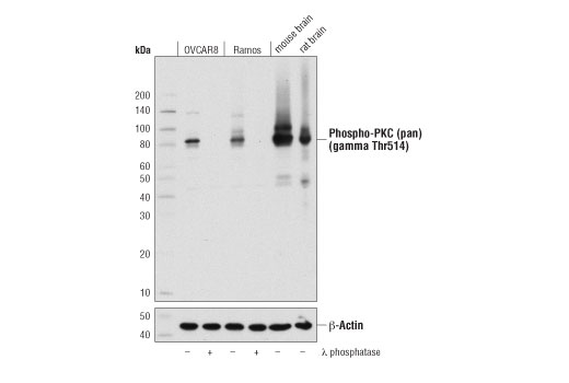 Western blot analysis of extracts from OVCAR8 and Ramos cells, untreated (-) or λ phosphatase-treated (+), and from mouse and rat brain, using Phospho-PKC (pan) (gamma Thr514) (D6Y3D) Rabbit mAb (upper) and β-Actin (D6A8) Rabbit mAb #8457 (lower).