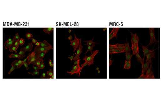 Confocal immunofluorescent analysis of MDA-MB-231 (left, high expressing), SK-MEL-28 (center, moderately expressing), and MRC-5 (right, lower expressing) cells using TDP1 (D8D1B) Rabbit mAb (green). Actin filaments were labeled with DyLight™ 554 Phalloidin #13054 (red).