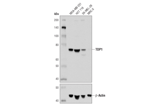 Western blot analysis of extracts from various cell lines using TDP1 (D8D1B) Rabbit mAb (upper) or β-Actin (D6A8) Rabbit mAb #8457 (lower).