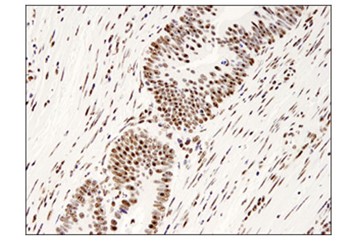 Immunohistochemical analysis of paraffin-embedded human colon carcinoma using PELP1 (D5Q4W) Rabbit mAb.