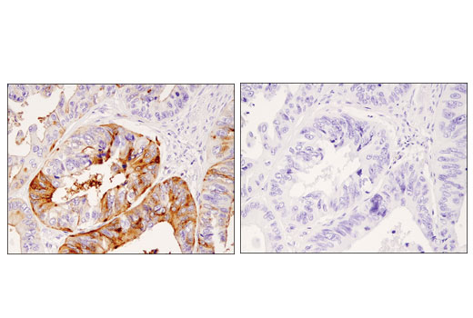 Immunohistochemical analysis of paraffin-embedded human colon carcinoma using DPP4/CD26 (D6D8K) Rabbit mAb in the presence of control peptide (left) or antigen-specific peptide (right).