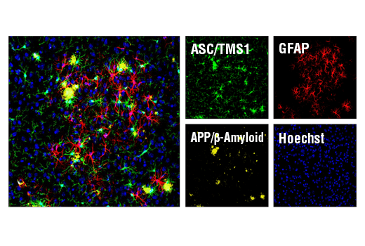 Confocal immunofluorescent analysis of mouse Tg2576 brain which overexpresses mutant human APP695. Sections were first labeled with ASC/TMS1 (D2W8U) Rabbit mAb (Mouse Specific) #67824 (green) and APP/β-Amyloid (NAB228) Mouse mAb #2450 (yellow). After blocking free secondary binding sites with Mouse (G3A1) mAb IgG1 Isotype Control #5415, sections were incubated with GFAP (GA5) Mouse mAb (Alexa Fluor® 647 Conjugate) #3657 (red). Nuclei were labeled with Hoechst 33342 #4082 (blue).