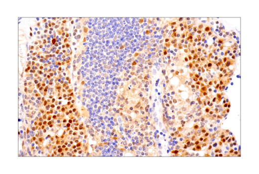 Image 26: Mouse Reactive Inflammasome Antibody Sampler Kit
