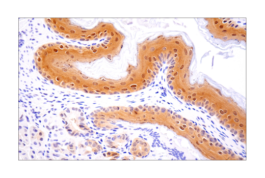 Image 23: Mouse Reactive Inflammasome Antibody Sampler Kit