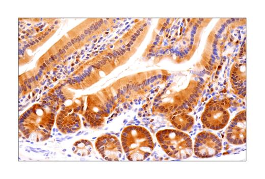 Image 34: Mouse Reactive Pyroptosis Antibody Sampler Kit