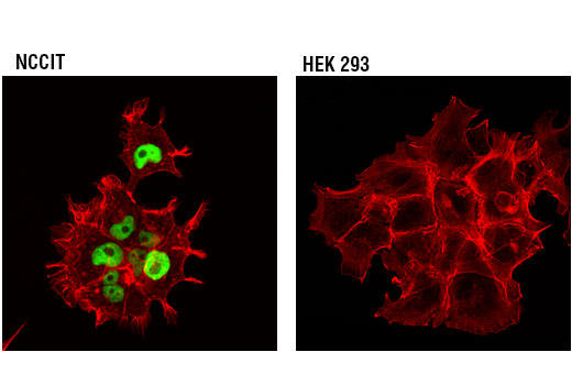Confocal immunofluorescent analysis of NCCIT (left) and HEK 293 (right) cells using DNMT3B (D7O7O) Rabbit mAb (green). Actin filaments were labeled with DyLight™ 554 Phalloidin #13054 (red). HEK 293 cells express very low levels of DNMT3B protein.